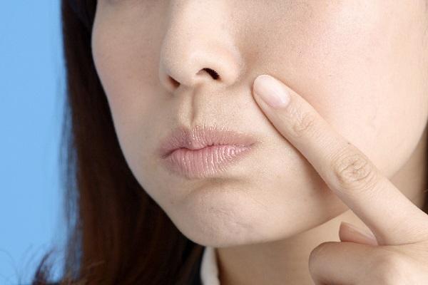 口周りにできるニキビの原因は男性ホルモンだけど…