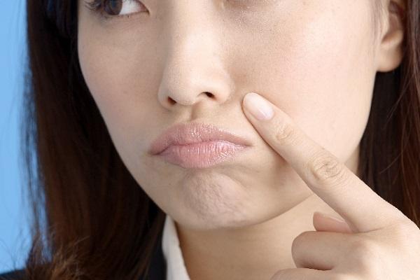 頬にニキビができてしまう原因と対策について